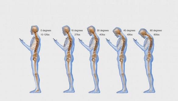 Американський лікар дослідив, що смартфони впливають на викривлення хребта