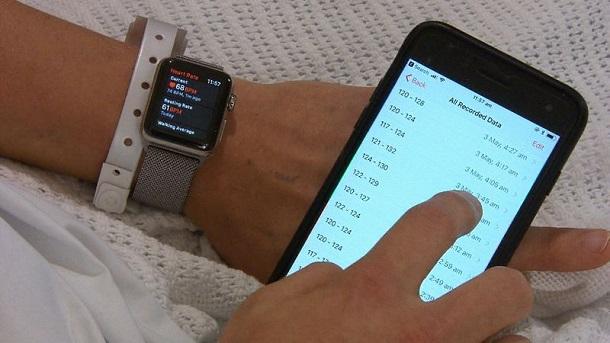Завдяки Apple Watch австралієць виявив серйозні проблеми з серцем