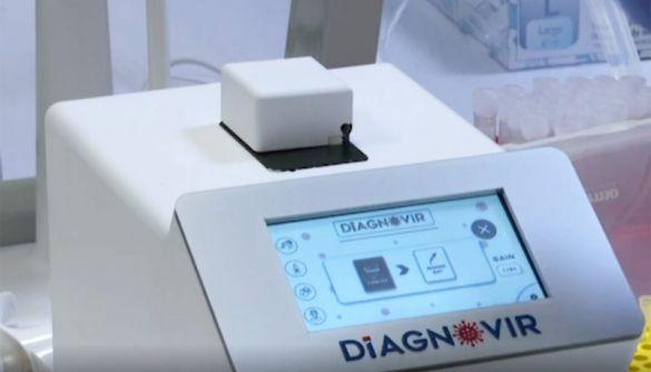 У Туреччині розробили новий тест на коронавірус, який показує результат за 10 секунд