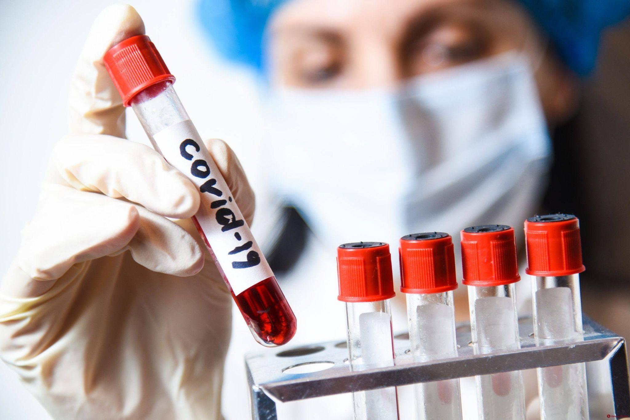 Більше половини українців можуть мати імунітет до COVID-19 - дослідження «Сінево»